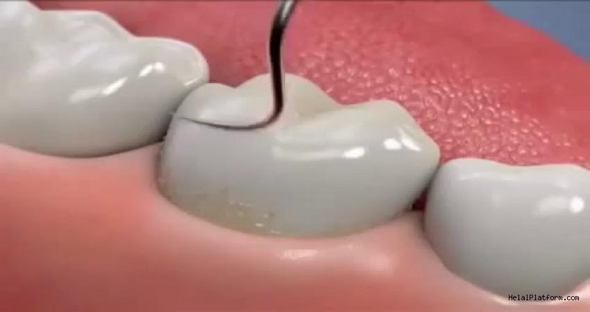 Diş taşı temizliği zararlı mıdır?